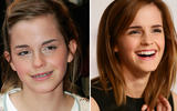 axn-celebs-with-braces-3